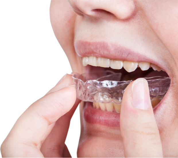 Invisalign® for Teens