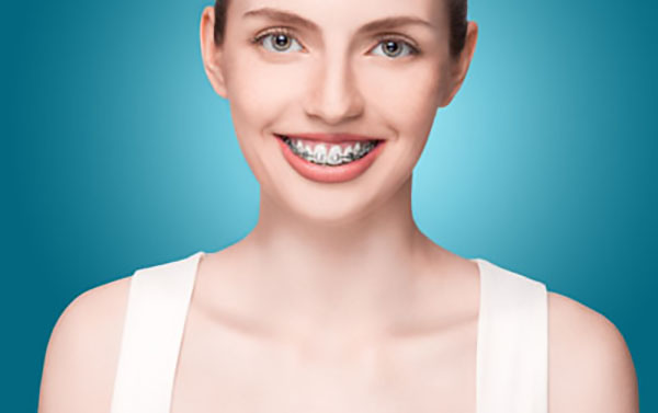 You May Need Orthodontic Work Before Getting A Dental Implant